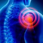 Trastornos musculoesqueléticos de origen laboral en el cuello y en las extremidades superiores
