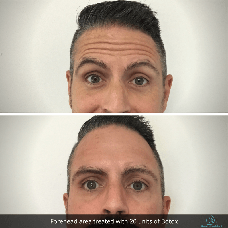 Before and After Michael forehead Botox 1