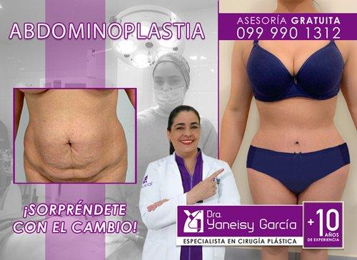 Abdominoplastia o Dermolipectomía en Quito al menor Precio