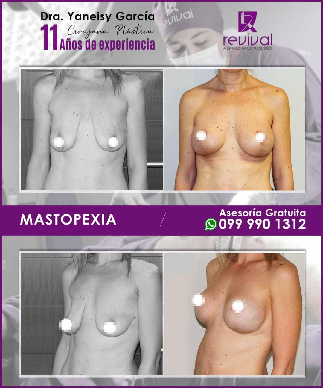 Maxtopexia o levantamiento de mamas
