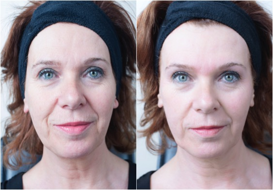Get an Instant Glow with Crystal Clear Comcit at Revive