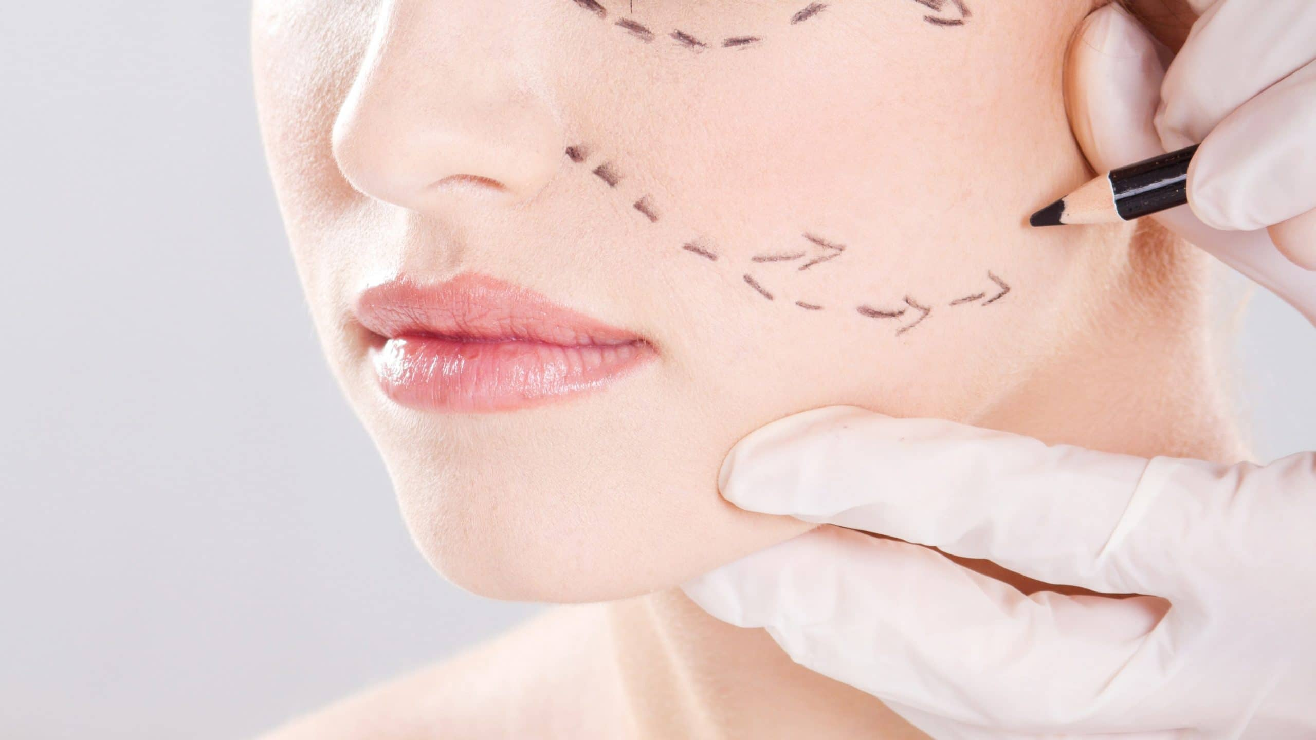 Professional Facelift