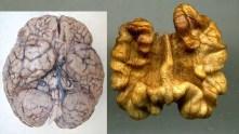 Les noix ont une forme semblable à celle du cerveau.