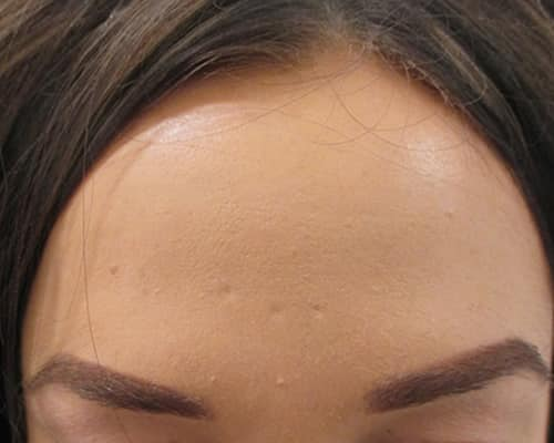 botox after manchester wilmslow cheshire chester london