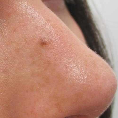 laser mole removal manchester chester london