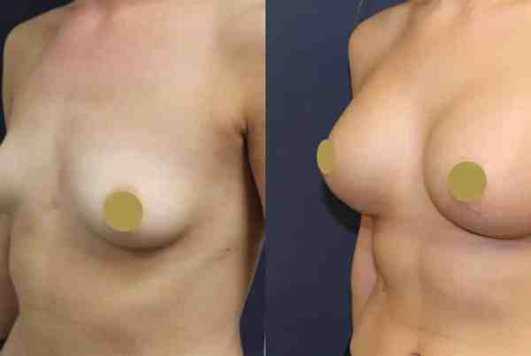 Breast Implants Manchester