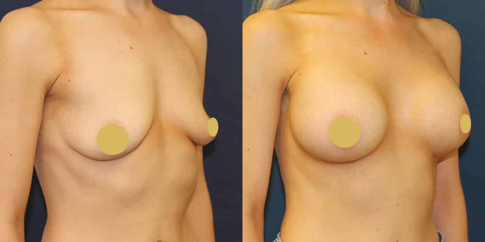 Breast Augmentation Manchester 350cc
