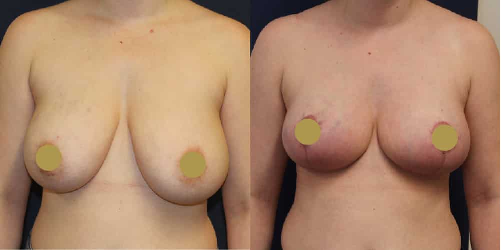 Breast Uplift Cheshire