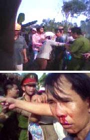 Đàn áp đánh đập người dân