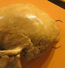 "Do you have an ""occipital bun""?"