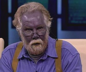 What is Argyria?