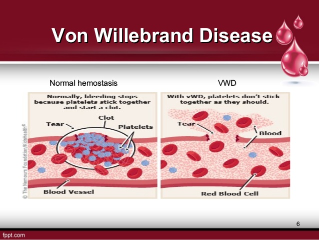 Is there any Relationship between Rh(D) Blood Group and Von Willebrand Factor Antigen Concentration? Von-willebrand-disease-6-638