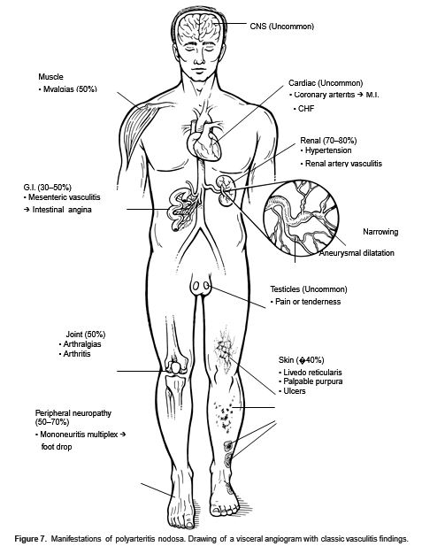 Figure 7. Manifestations of polyarteritis nodosa. Drawing