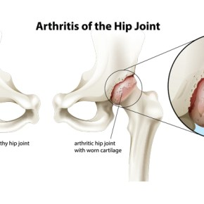 All your Arthritis questions, answered.