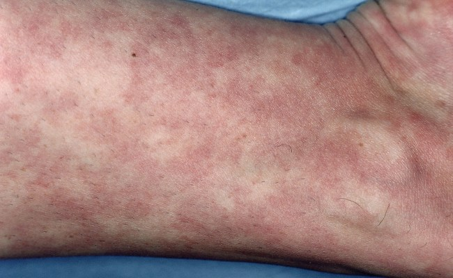 Active Sle Disease Activity Damage Linked To Greater