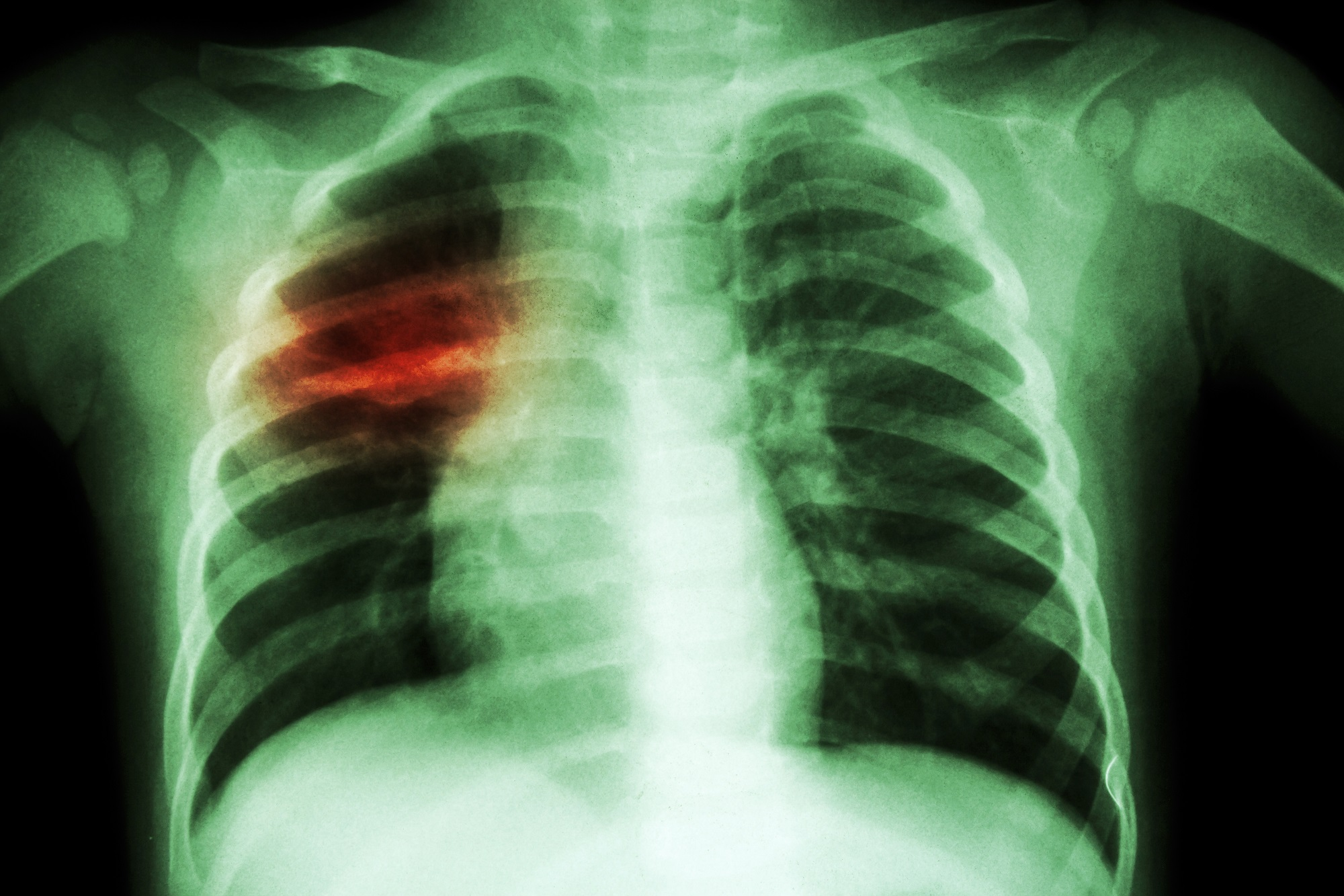 Lung Disease Increasingly Detected in Children With Systemic Juvenile Idiopathic Arthritis - Rheumatology Advisor