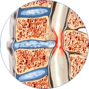 Stenosi-disco-artrosica-vertebrale-cervicale-
