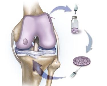 Rafforzare cartilagine e legamenti con rimedi naturali