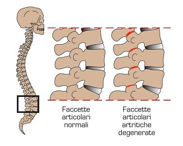 (del Dr.Luca Canzoneri per Medicitalia) – Il mal di schiena lombare con  coinvolgimento o meno degli arti inferiori è un problema molto comune nella  nostra ... 6e853ee67127