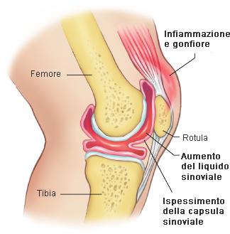 Rimedio domestico per gonfiore e dolore al ginocchio, come curare un ginocchio gonfio: 19 passaggi