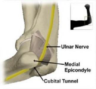 (a cura del Dr.Luigi Grosso) – Tra le patologie da compressione di un nervo  periferico quella dell intrappolamento del nervo ulnare al gomito  rappresenta ... 49f8e05b97c5