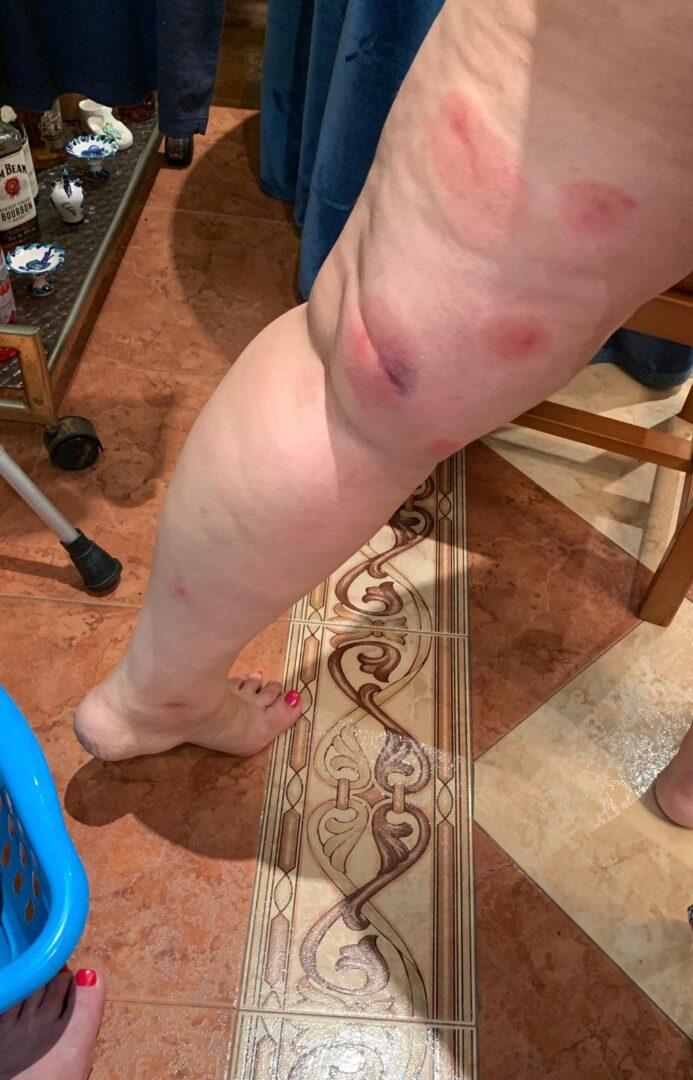 El PP denúncia la passivitat de l'Ajuntament d'Alzira davant les plagues de mosquits