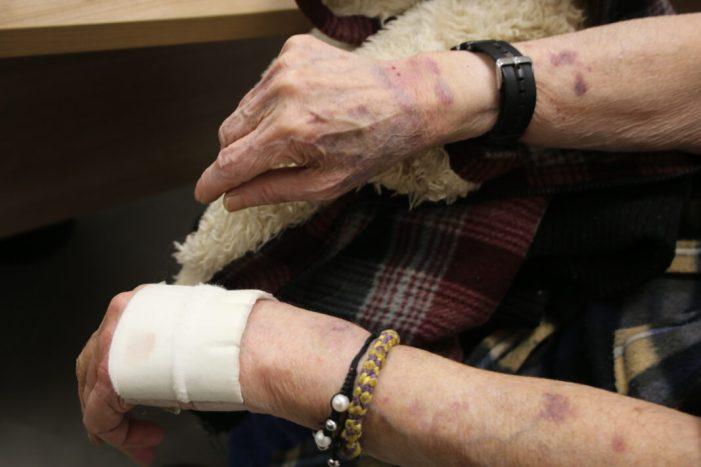 La Policia Local de l'Alcúdia rescata una dona lligada i colpejada a sa casa