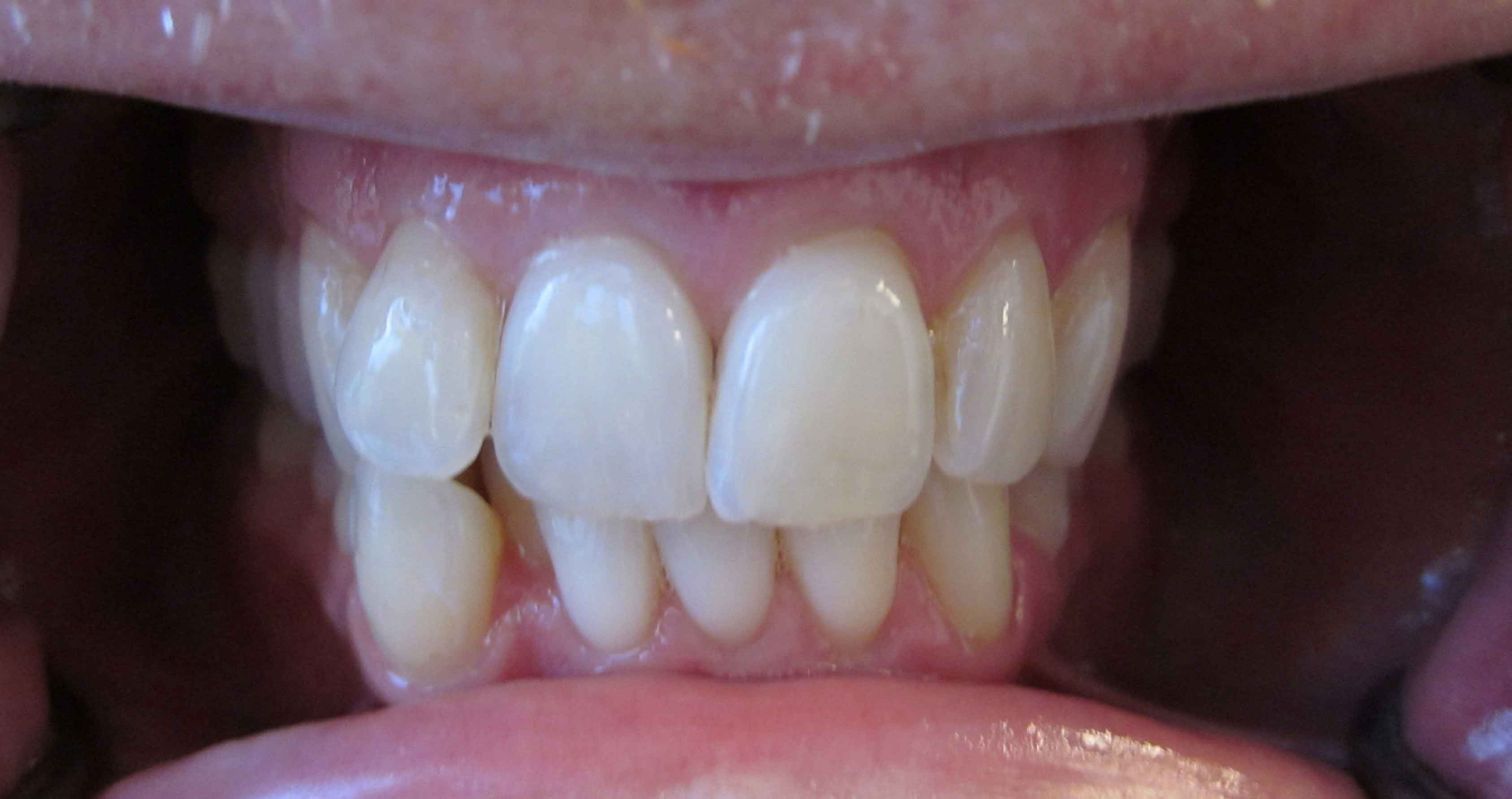 orthodontia san rafael before and after