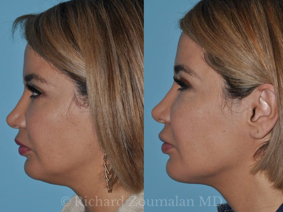 It's commonly performed on the abdomen, buttocks, neck, chin, thighs, back, and the back of arms. Neck (Submental) Lipo: Before and After - Beverly Hills