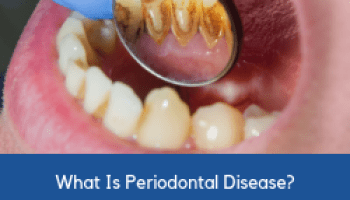 Periodontitis Increases Risk of Alzheimer's Disease According to New