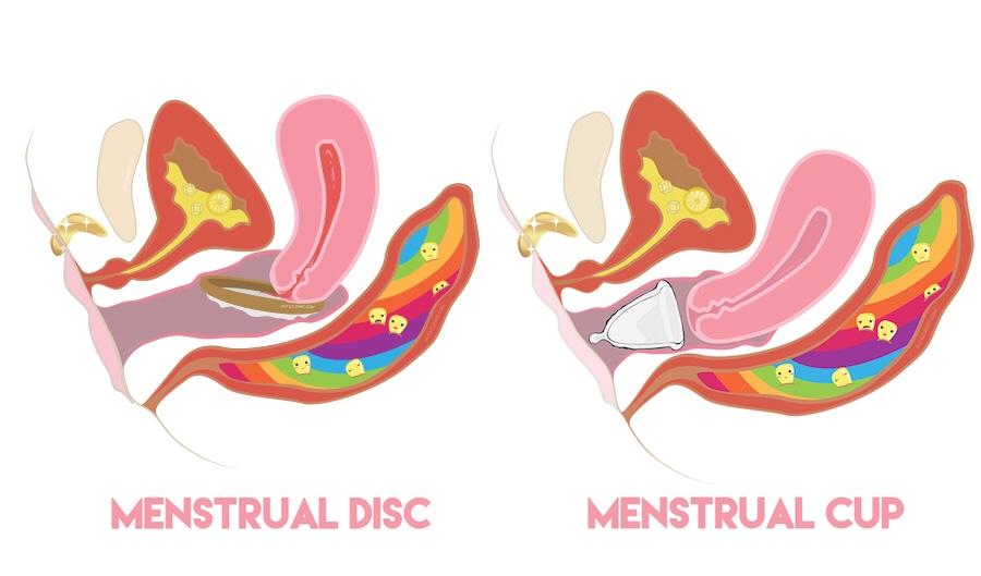 Menstrual ring versus cup