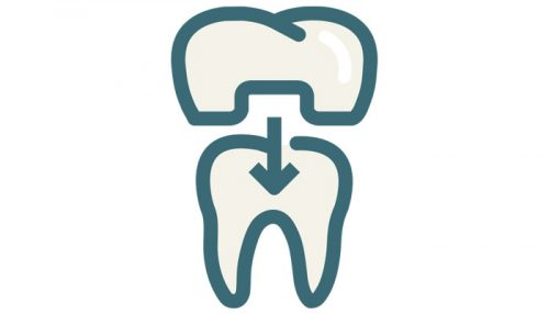 Dental Crowns Bridges