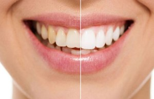 Teeth Discoloration