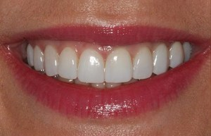 Tooth Discoloration Solution