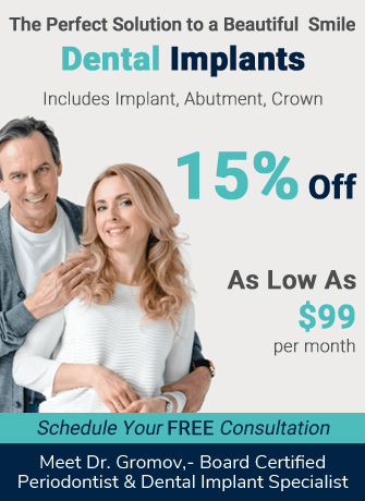15% off on Dental Implants