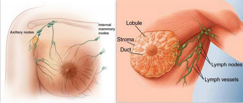 4 MALE breast cancer symptoms because it noticed in male ...