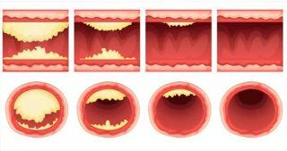 alimenti arterie ostruite