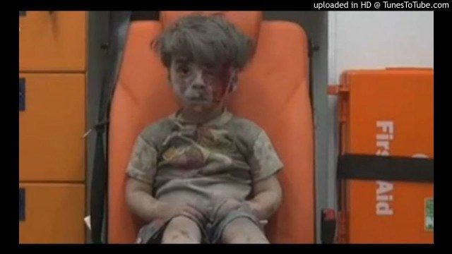 PIC - omran daqneesh syrian child3
