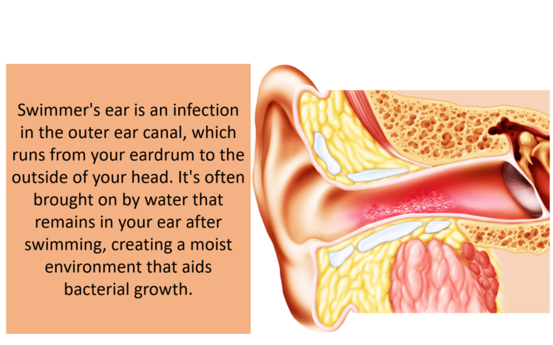 Swimmer's Ear – Symptoms and Prevention