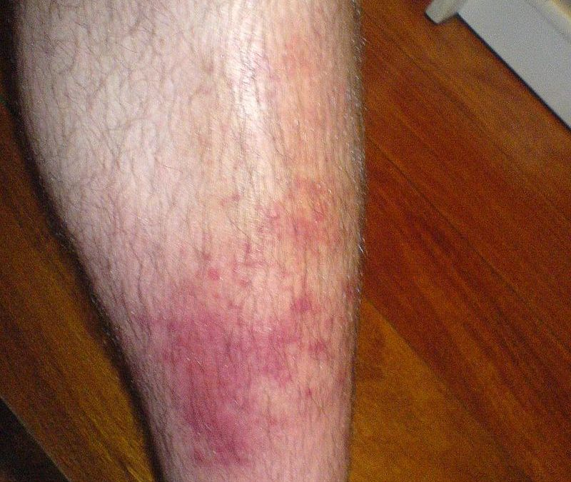 Cellulitis: A Common Skin Infection