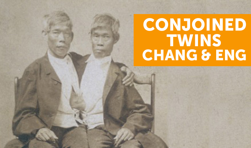 The Worlds Most Famous Conjoined Twins Chang and Eng Bunker