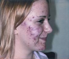 ovaio policistico acne 1
