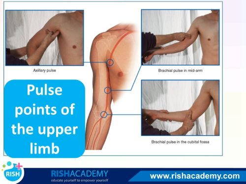 Blood Supply of the Upper Limb www.rishacademy.com