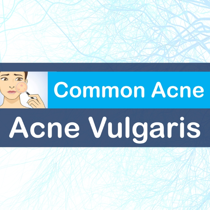 acne vulgaris icd 10