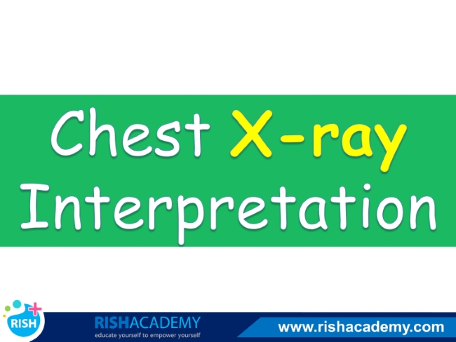 chest xray interpretation www.rishacademy.com