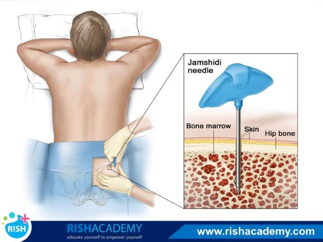 bone marrow aspiration
