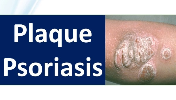 plaque psoriasis medication