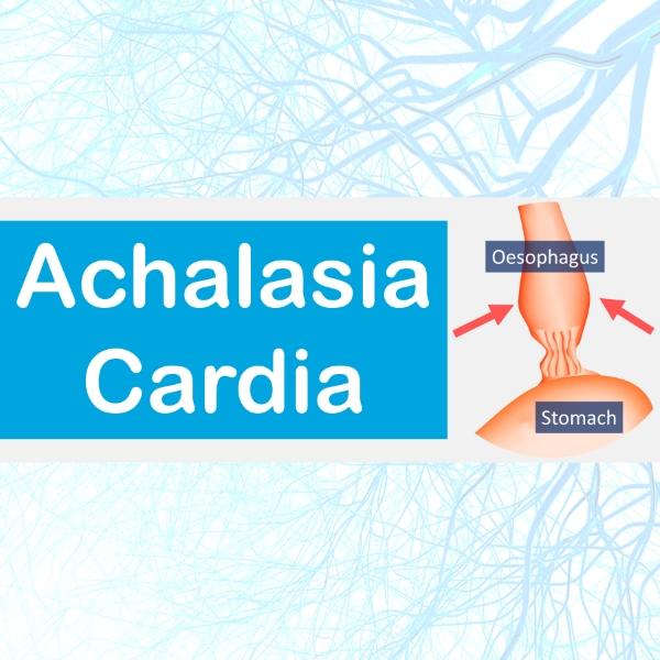 Achalasia cardia