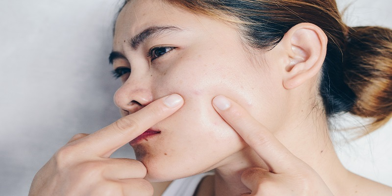 Simple and Natural Ways to Deal with Acne at Home