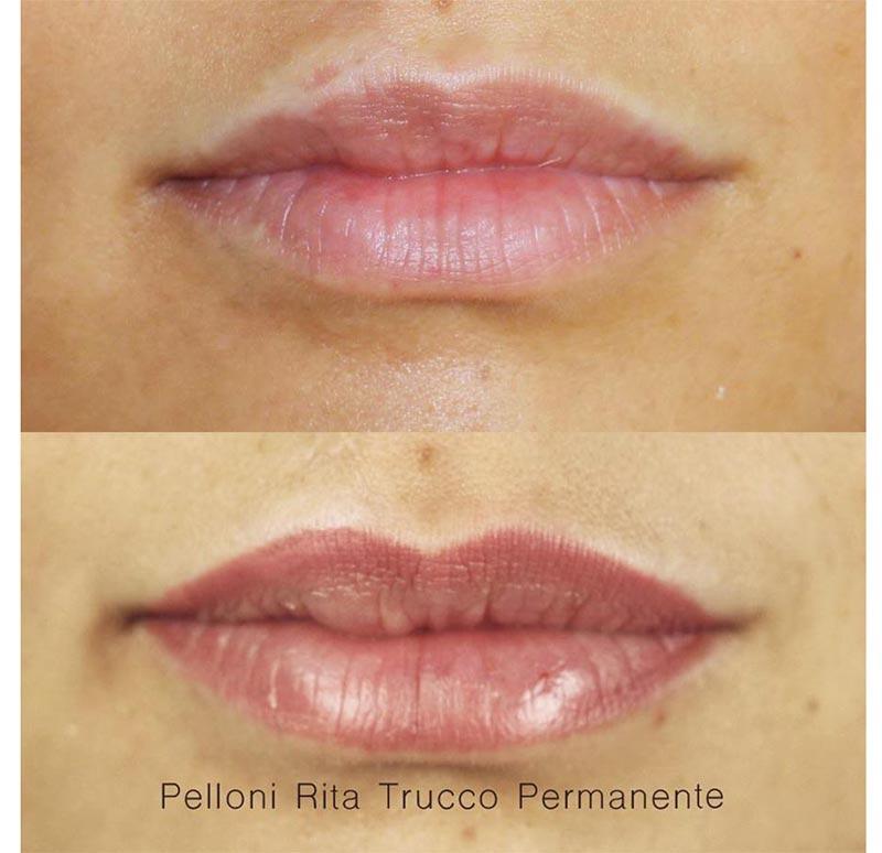 gallery-lips-02